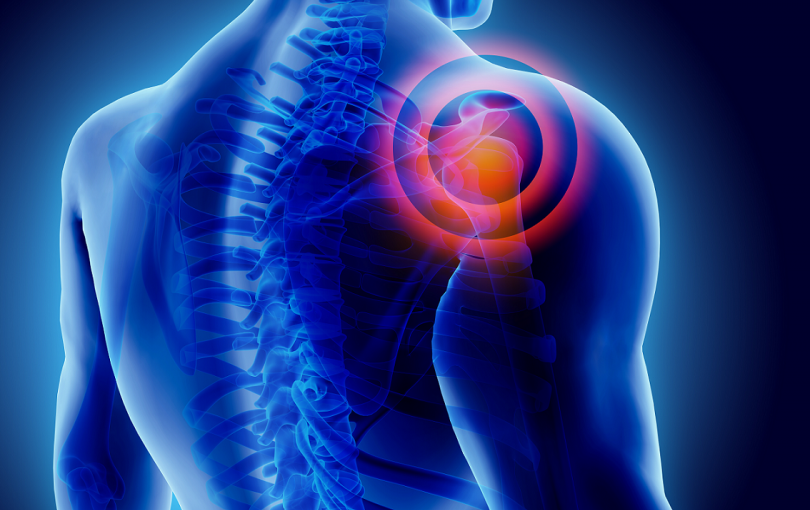 Disability for Shoulder Injury